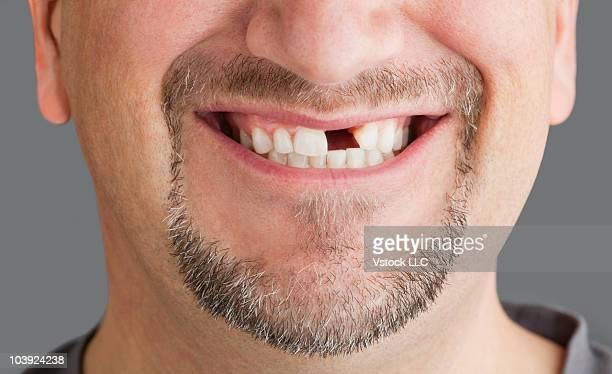 man's mouth with missing tooth - personas sin dientes fotografías e imágenes de stock