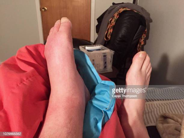 a man's swollen foot and ankle - swollen ankles stock pictures, royalty-free photos & images