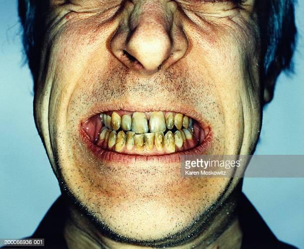 man's teeth damaged by smoking, close-up - fealdad fotografías e imágenes de stock
