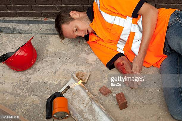 manual worker with burnings. accidents can happen. - burn injury stock photos and pictures