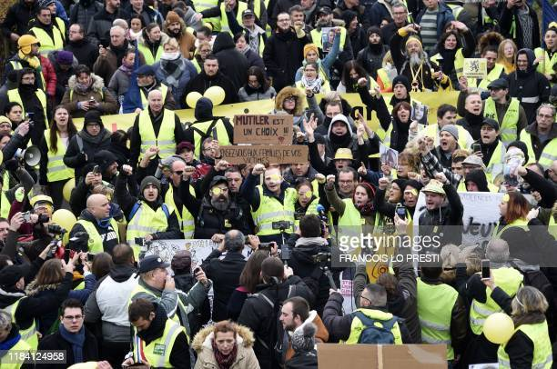 """Manuel C., a """"Yellow Vest"""" who was wounded in his left eye by a projectile likely shot by police during a """"yellow vest"""" demonstration on November 16,..."""