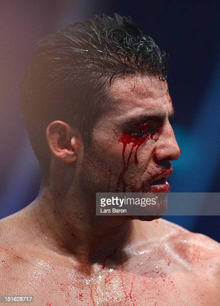 Manuel Charr of Germany is seen after loosing the WBCheavy weight title fight between Vitali Klitschko of Ukraine and Manuel Charr of Germany at...