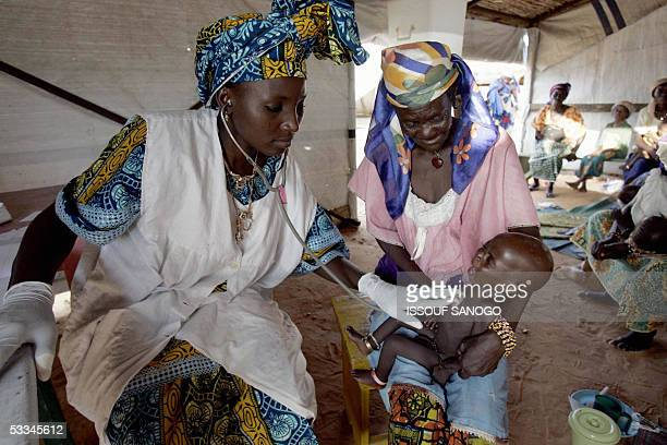 A nurse examines a baby suffering from malnutrition 09 August 2005 in the French humanitarian organization Medecins Sans Frontiers camp in Maradi...