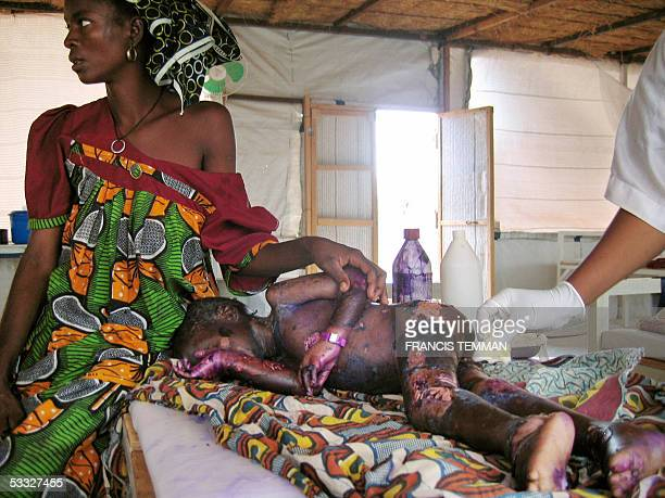Aminou a fouryear Nigerois boy suffering from Kwashiorkor lies on a bed with his mother next to him while being treated 31 July 2005 at the Medecins...