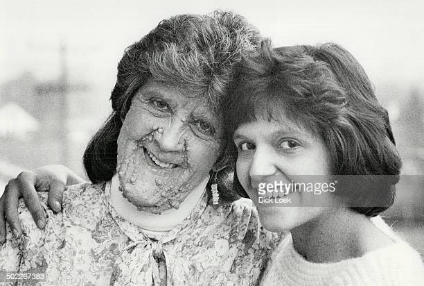 Margaret Muise left and her daughter Rhonda are victims of neurofibromatosis also known as the Elephant Man's disease