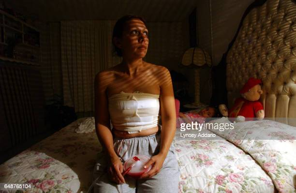 Maria de Jesus Lopez sits in her home with a device to drain blood and foreign substances from her chest two days after having a mastectomy in...