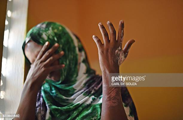 Marian a victim of forced marriage who set herself on fire after fleeing her husband poses showing the scars on her hand and arm the Elman Peace and...
