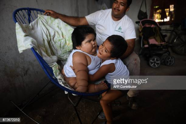 Mario Gonzales looks as his elder son Mario hugs his tenmonthold brother Luis at their home in Tecoman Colima state Mexico on November 8 2017 Luis...