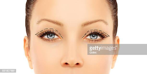 Marking the face.Upper-Eyelid Blepharoplasty