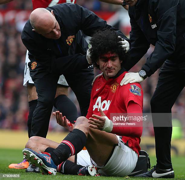 Marouane Fellaini of Manchester United receives treatment on a head injury during the Barclays Premier League match between Manchester United and...