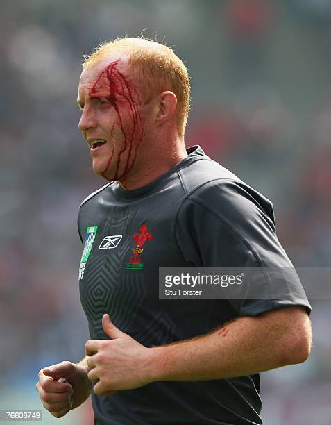 Martyn Williams of Wales leaves the pitch with a blood injury during the Rugby World Cup 2007 Pool B match between Wales and Canada at the Stade de...