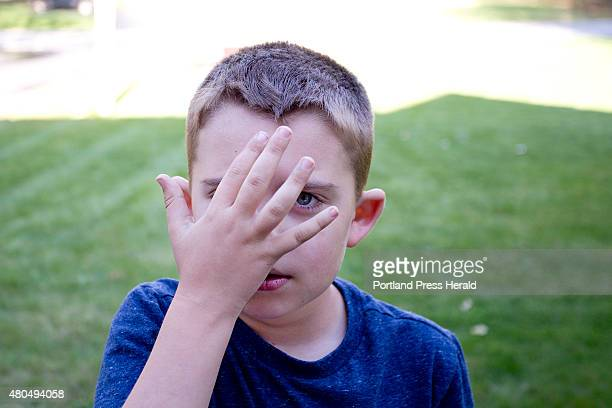 Mason Lee points to his forehead while playing in the front yard at his Winslow home Wednesday May 13 to show where a bruise will start to form after...