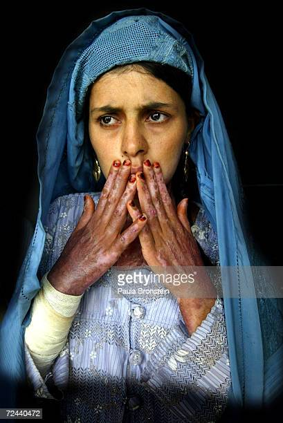 Masooma 18yearsold who suffers with severe burns on 70% of her body from selfimmolation shows her scars on her hands at the Herat Regional Hospital...