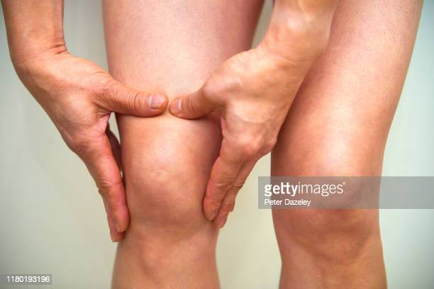 massaging knee - osteoarthritis and rheumatoid arthritis - medicine stock pictures, royalty-free photos & images