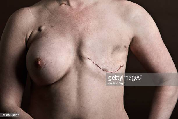 Mastectomy on Breast Cancer Patient