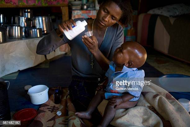 Mathato Notsi measures out the twice daily dose of anti retroviral medicines for her baby Mpho Mathato discovered that she and her baby are HIV...