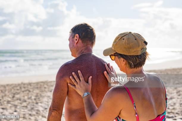Reifes Alter paar Sonnenschutz am Strand anziehen