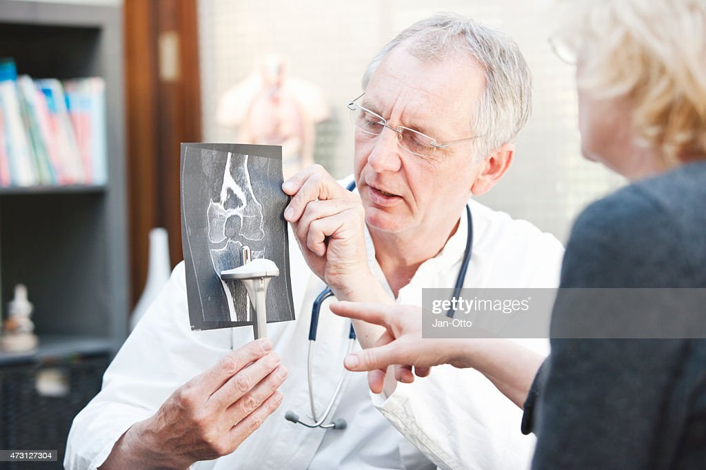Mature doctor presenting x-ray and knee arthroplasty to female patient : Stock Photo