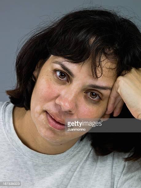 maturo ispanica femmina close-up (senza makeup - acne rosacea foto e immagini stock