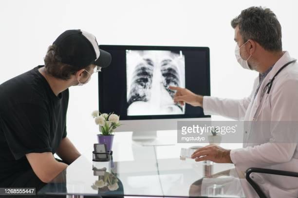 reifer männlicher arzt schaut auf eine röntgenaufnahme einer brust mit seinem patienten. - lungenkrebs stock-fotos und bilder