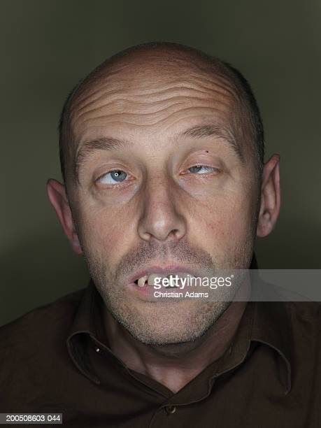 mature man wearing fake teeth, making funny face, close-up - ugly bald man fotografías e imágenes de stock