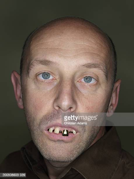mature man wearing fake teeth, making funny face, close-up, portrait - ugly bald man stock pictures, royalty-free photos & images