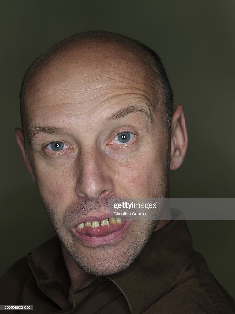 Mature man wearing fake teeth, making funny face, close-up, portrait : Stock Photo