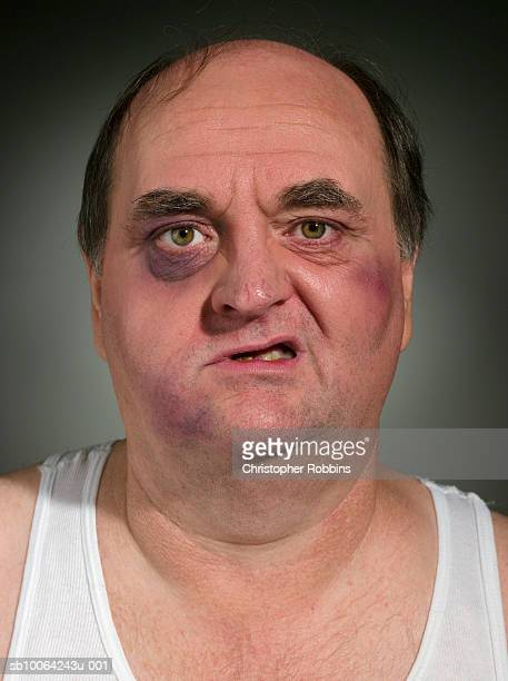 mature man with bruised face, portrait, close-up - ugly bald man stock photos and pictures