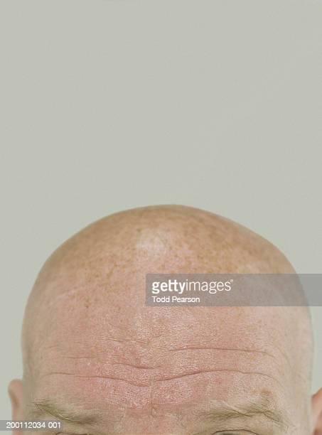 mature man's forehead, close-up - pelado fotografías e imágenes de stock