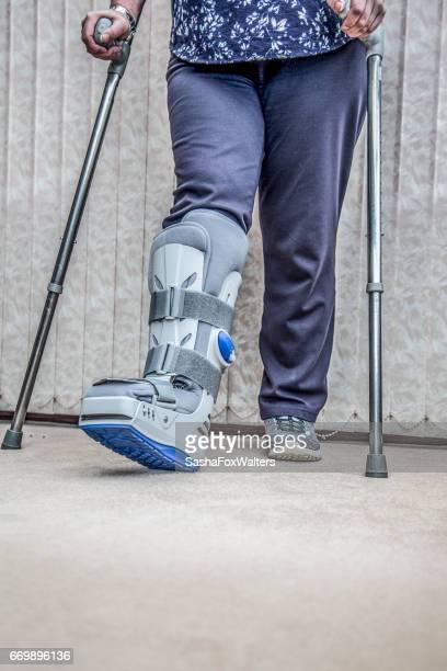 mature woman wearing leg brace and crutches - gipsbein stock-fotos und bilder