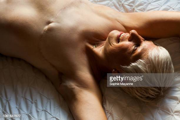 a mature woman with mastectomy scars lying on a bed - mastectomia foto e immagini stock