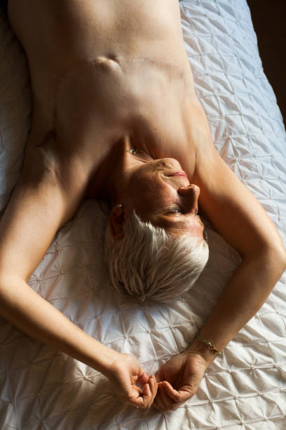 A mature woman with mastectomy scars lying on the bed