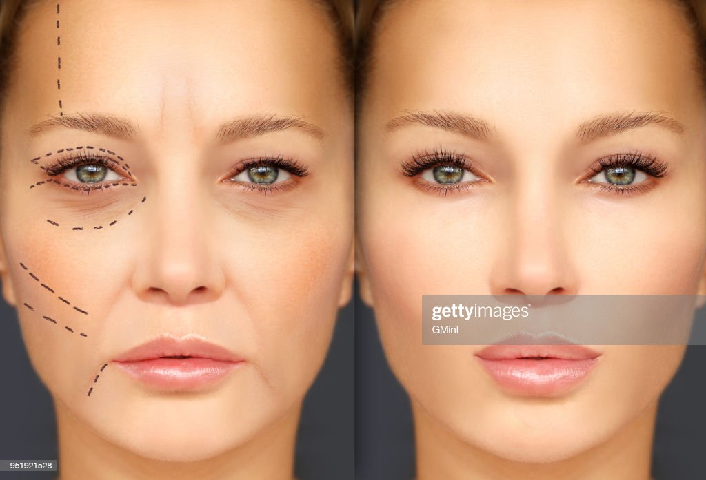 Mature woman-young woman.Endoscopic forehead and brow lift.Marking the face.Perforation lines on females face, plastic surgery concept. : Stock Photo