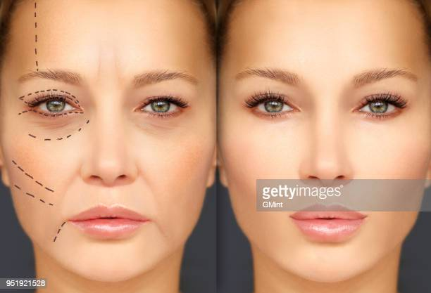 mature woman-young woman.endoscopic forehead and brow lift.marking the face.perforation lines on females face, plastic surgery concept. - eyelid stock photos and pictures