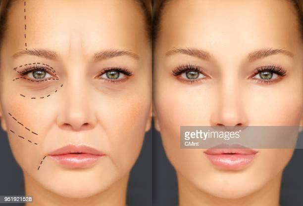 熟女若い女。内視鏡額と眉を持ち上げます。顔をマーキングします。女性の顔、整形手術概念に穿孔行。