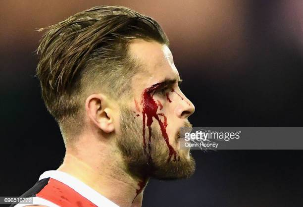 Maverick Weller of the Saints comes from the ground with a cut eye during the round 13 AFL match between the North Melbourne Kangaroos and the St...