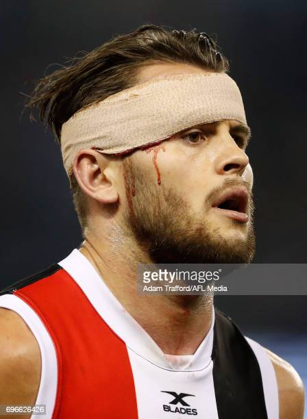 Maverick Weller of the Saints is seen with his head bandaged during the 2017 AFL round 13 match between the North Melbourne Kangaroos and the St...