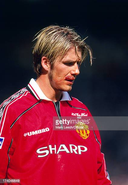 22 May 1999 FA Cup Final Manchester United v Newcastle United David Beckham sustains a badly cut lip