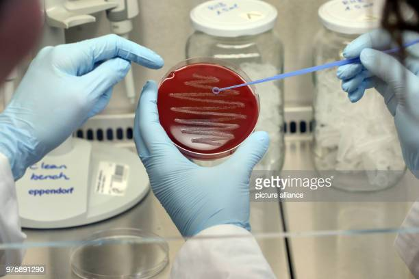 May 2018, Germany, Berlin: A microbiologist at the Max-Planck-Institute for InfectionBiology prepares a bacterial colony of the strain Streptococcus...