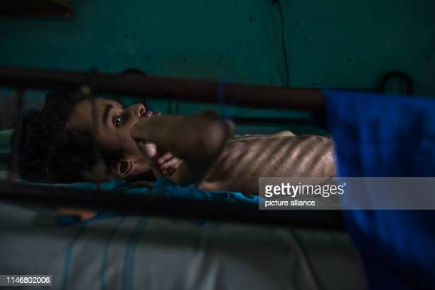 Miguel Blanco who suffers from hydrocephalus and malnutrition lies in his bed in the Altos del Milagro Norte district The 28yearold is not getting...