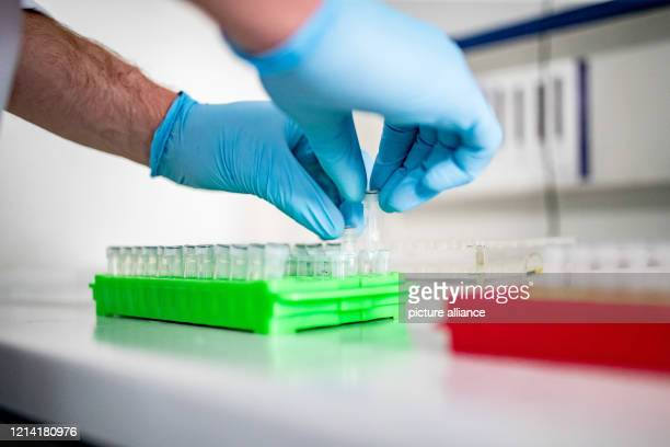 May 2020, North Rhine-Westphalia, Duesseldorf: A doctoral student at the Heinrich Heine University in Düsseldorf is working on samples for...