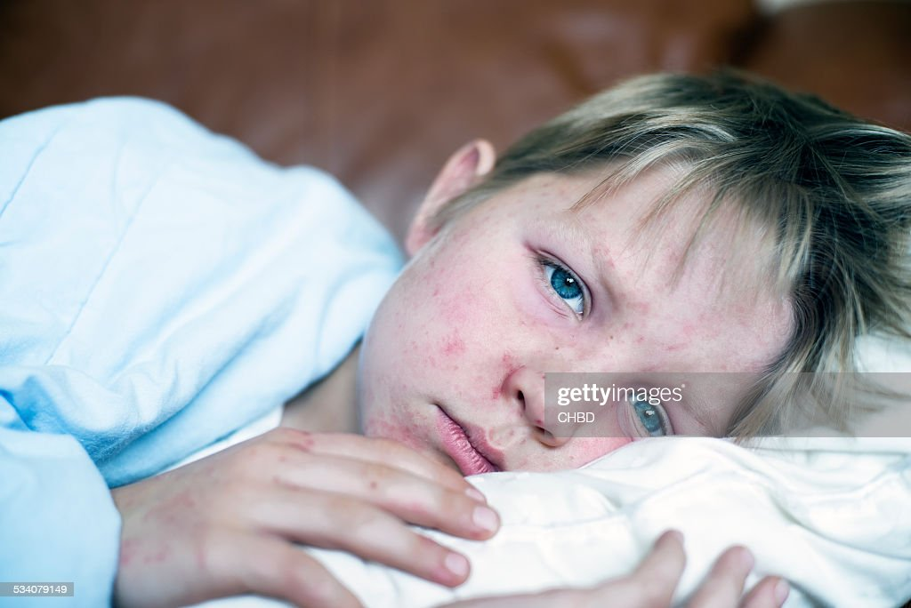 Measles : Stock Photo