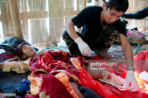 A medic from the Free Burma Rangers cleans the stump of a Karen National Liberation Army soldier who lost a leg on a landmine planted by Burmese...