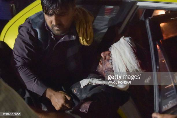 Medical and hospital staff carry an injured man out of a car for treatment after two blasts, which killed at least five and wounded a dozen, outside...
