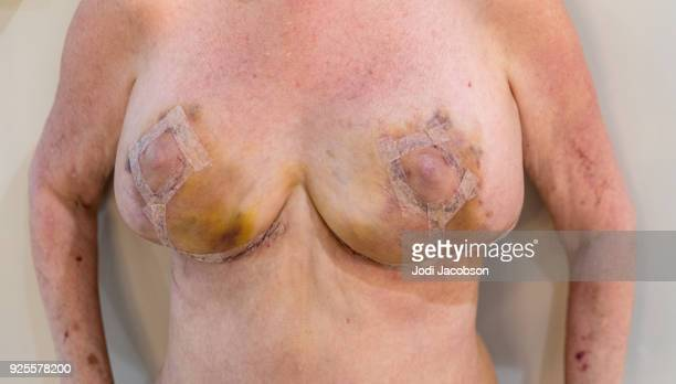 Medical: Breast reduction keyhole incision on woman