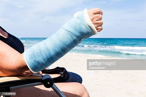 medical: broken arm in the summer - cast colors for broken bones stock pictures, royalty-free photos & images