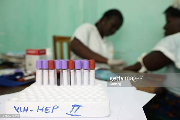 Medical center for HIV patients Blood test Togo