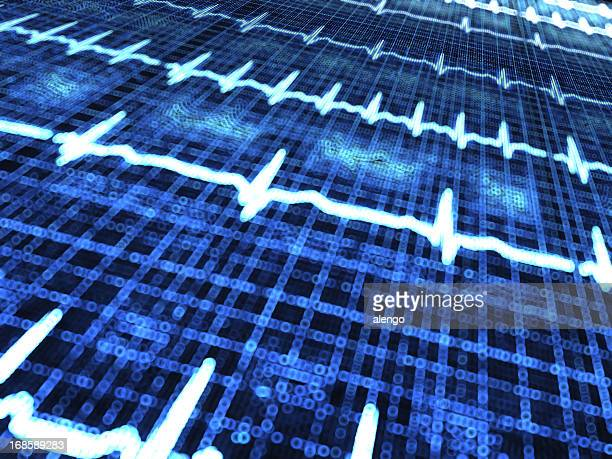 medical diagram - pacemaker stock pictures, royalty-free photos & images