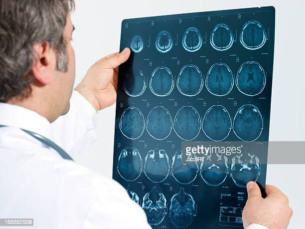 medical doctor analyzing a ct scan - tomography stock pictures, royalty-free photos & images