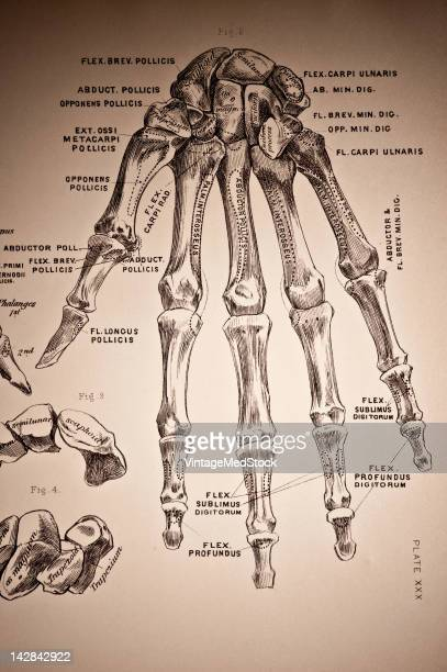 A medical drawing from 'A System of Human Anatomy Including its Medical and Surgical Relations' illustrates skeletal system on the human hand 1883
